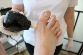 elever øver fodstatus og ser på sår på kursus i fodstatus og sår